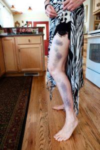 Bruises close-up