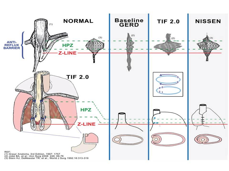 GERD Advanced Anatomy: Part 2 TIF