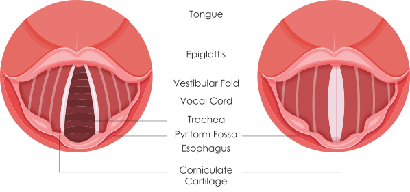 Vocal Nodules and Vocal Health
