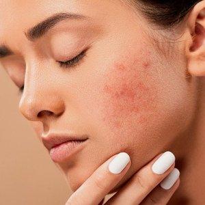 Solution Hyperpigmentation, taches, plaques foncées, taches de peau ?