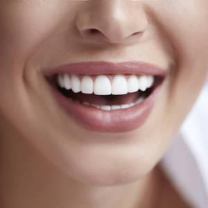 4 astuces pour retrouver un sourire éclatant !