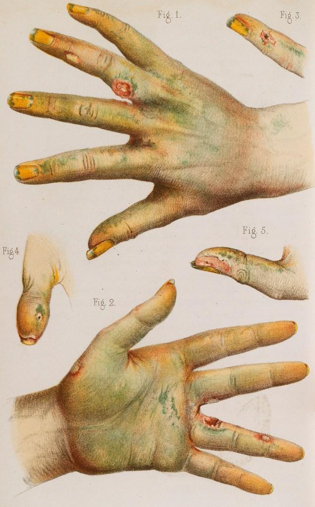 Mary Ann Cotton - Arsenic