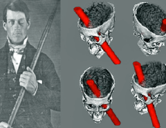 "Phineas Gage, Antonio Damasio y ""El Error de Descartes"""