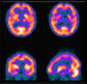 ¿La psicoterapia produce cambios cerebrales?, Terapia Gestalt Valencia - Clotilde Sarrió