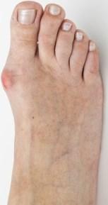 Hallux Valgus Fuß