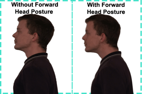 Showing with and without forward head posture