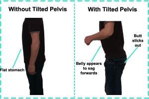 Image showing with and without a tilted pelvis