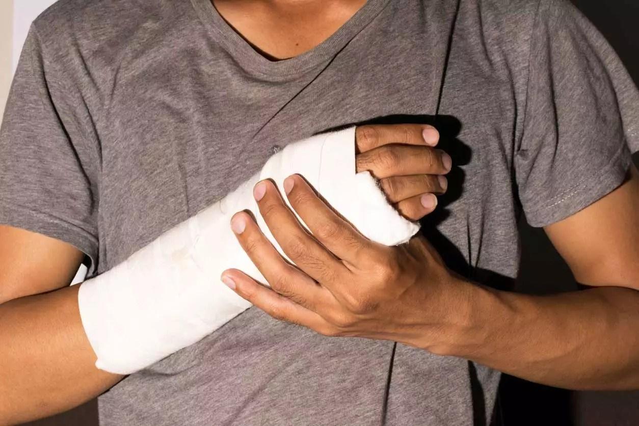 Man With A Broken Arm