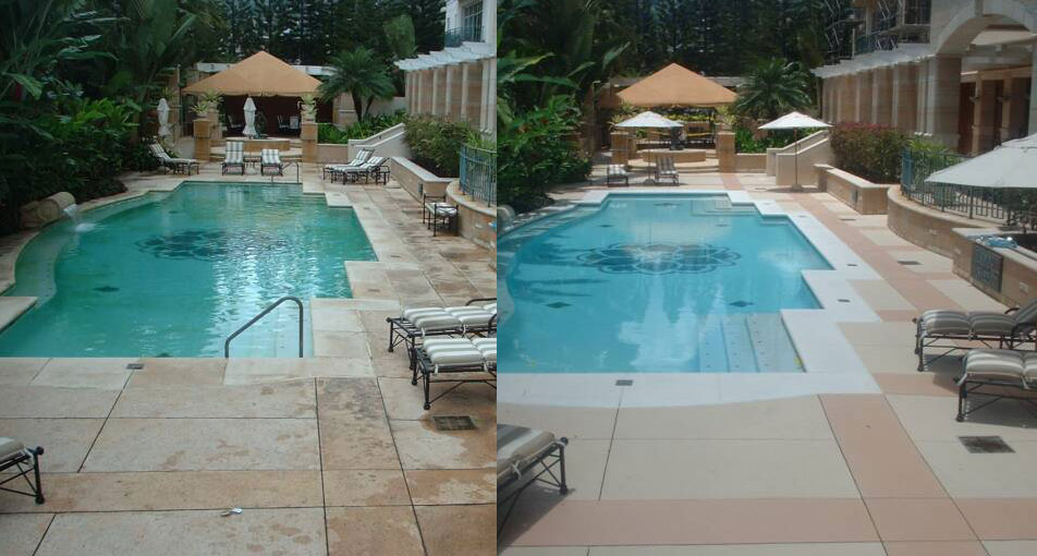 Before Amp After Newlook International