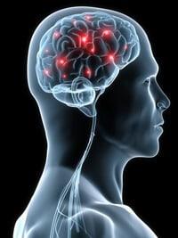 neurology Patient Referrals from a Neurologist's Perspective