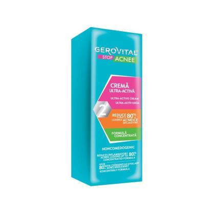 ultra active gel cream acne Gerovital