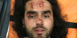 Verletzter Aktivist