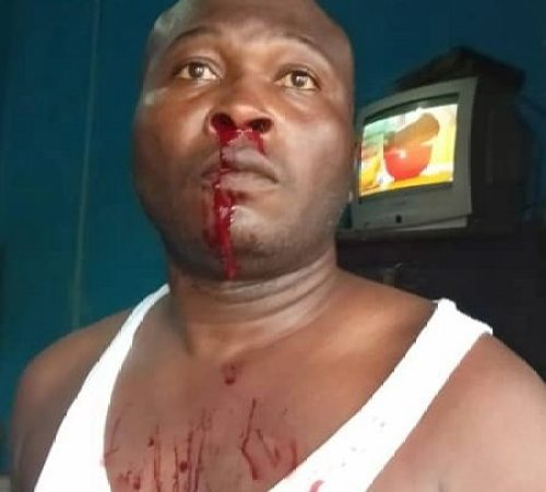 Inspector Tetteh Agbanyo - PHOTO: Police Officer Brutally Assaulted By 'Macho Men' In The Western Region — See