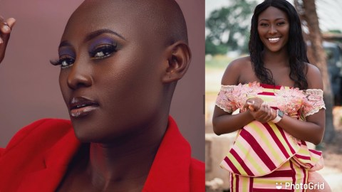 Meet Solace, The Beautiful Bald Model Changing The Narrative Of Modeling (+PHOTOS)