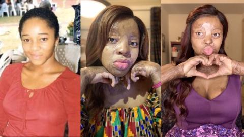 Inspiring story of Kechi Okwuchi; a Nigerian-American singer, survivor of fatal plane crash who went on to graduate with first degree in Economics