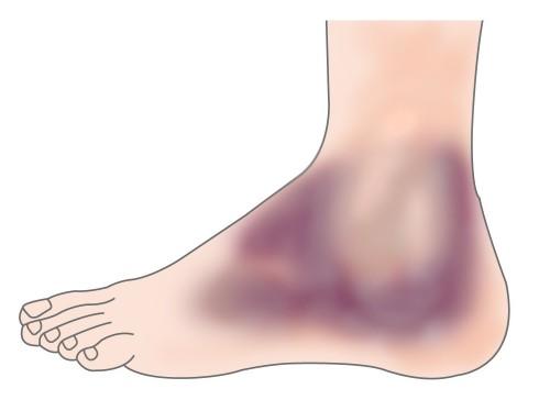Image result for sprains