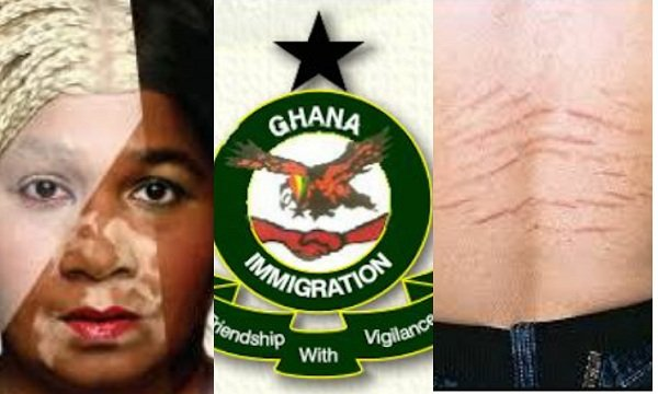We Don't Want Ladies With Stretch Marks, Bleached Skin - GIS