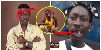 Supa aka Ghana 2Pac shares the sad story of how he lost all his teeth