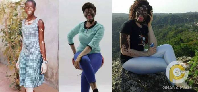 Ghanaian nurse with Vitiligo goes viral with her #10years challenge