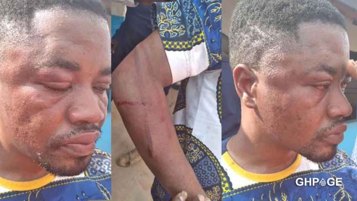 A young man lashed with 40 strokes of canes for insulting a Queen mother