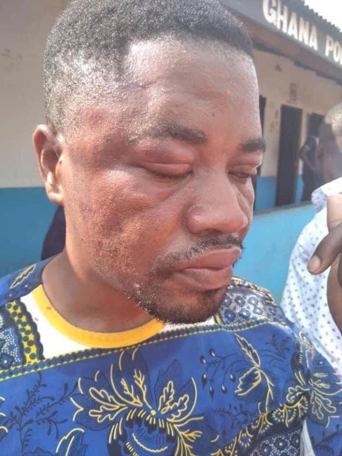 NPP communicator lashed with 40 strokes...