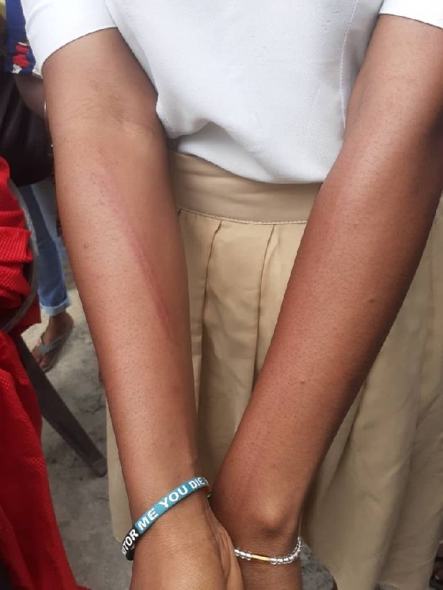 Scars sustained by the 19 year old student following the assault
