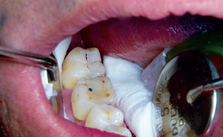 mantenimento-igiene-orale-19