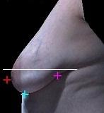 乳房の下垂が強い症例