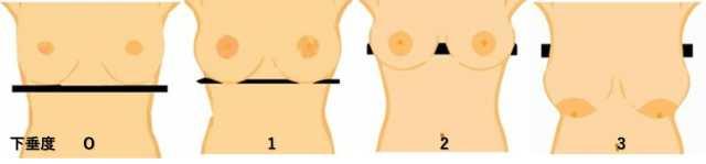 胸の下垂度