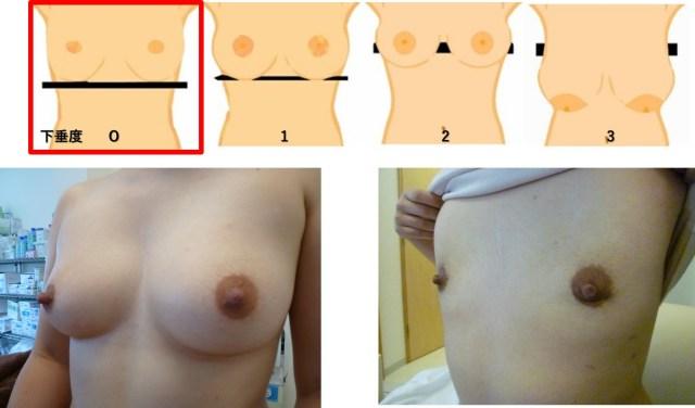 下垂のない乳房の手術方法