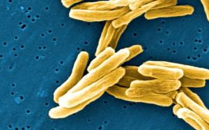 Tuberculosis bacteria chopin