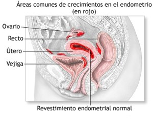 Endometriosis  Endometriosis EMDOMETRIOSIS 1