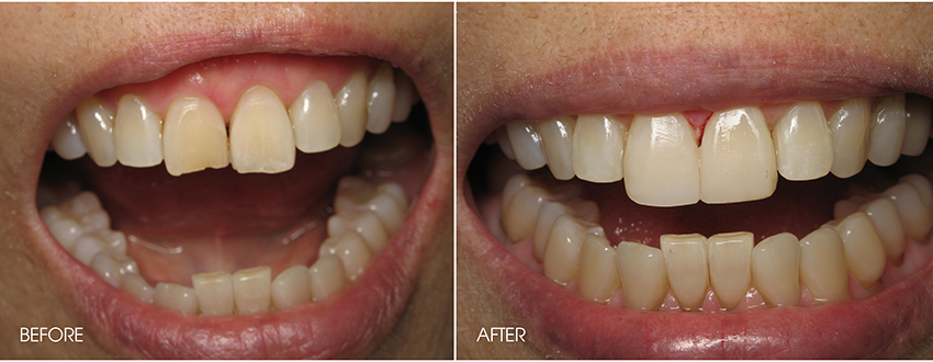 Broken Options Tooth Repair