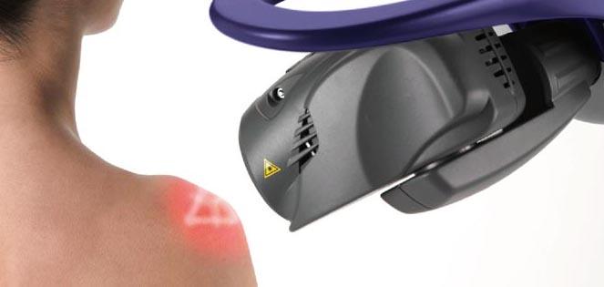 laser medicina estetica, Cos'è il LASER