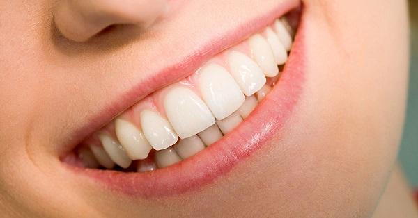 τέλεια δόντια
