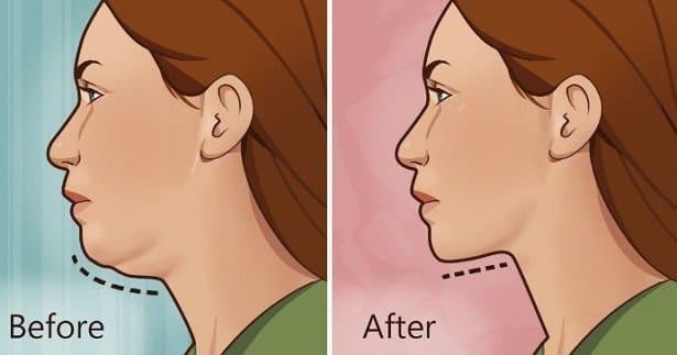 Έτσι θα εξαφανίσεις το περιττό λίπος στο πρόσωπό σου