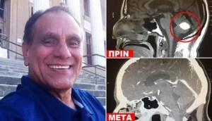 Read more about the article Άντρας με καρκίνο «νίκησε» τον όγκο στο κεφάλι με προσευχή στο Θεό και οι γιατροί «σκίζουν τα πτυχία τους»
