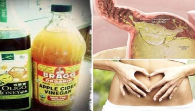 Δείτε τι συμβαίνει όταν πίνετε μηλόξυδο με μέλι με άδειο στομάχι το πρωί!