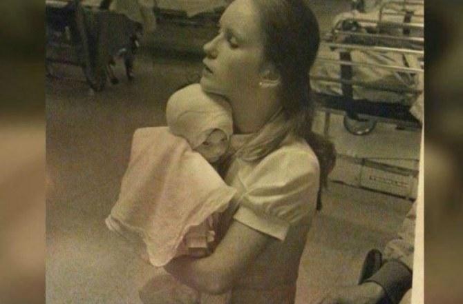 Το 1977 νοσοκόμα κράτησε αυτό το καμένο μωρό