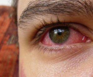 Prevenire e curare gli occhi arrossati