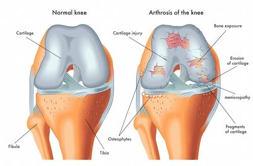 Risultati immagini per artrosi