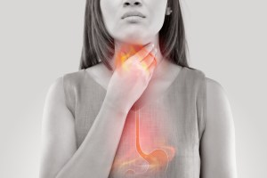 woman experiencing symptoms of reflux or GERD
