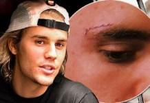 Justin Bieber Seeks Treatment for Depression, Cause Revealed