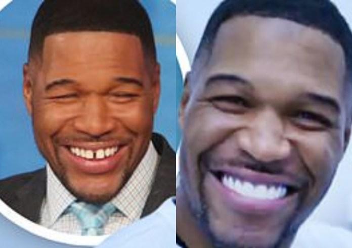 Ex - NFL Player Closes His Signature Gap Tooth