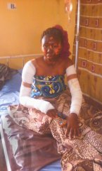Lady shows off transformation photos 3 years after surviving gas explosion