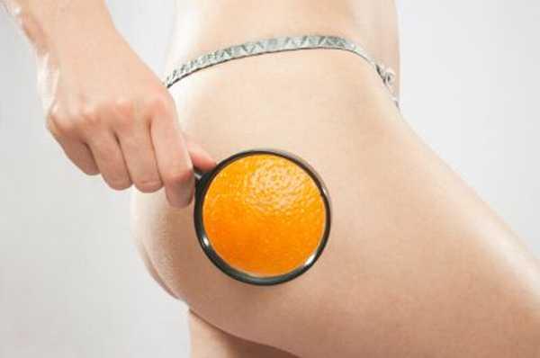 Dieta e Cellulite: il Dossier