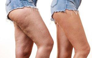 Cellulite personal trainer firenze