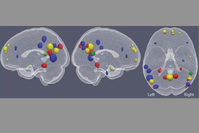Inteligencia Artificial podría leer tus pensamientos