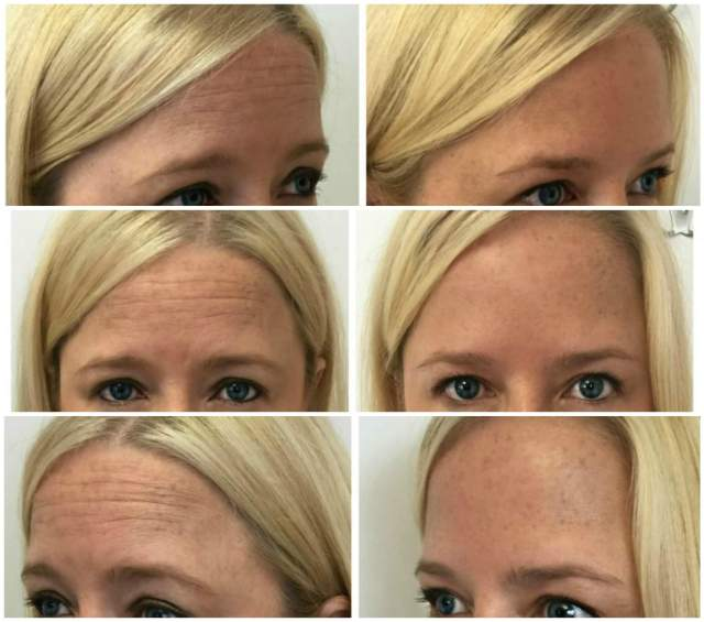 Every 5 Seconds, People Search THESE Botox & Juvederm Questions