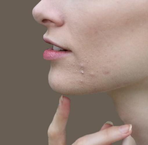 7 things that Make Acne Worse! 29